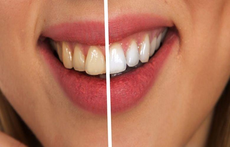 Nieuw 9 tips om je tanden zelf witter te maken VG-45